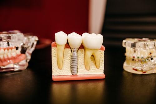 Dentist vs. Dental Hygienist